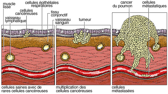 cancer cellule maligne