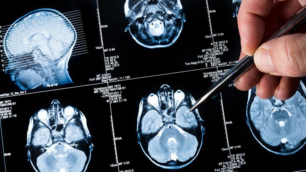 cancer cerebral esperanza de vida intraductal papilloma american cancer society