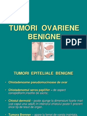 Cancerul de col uterin. Simptome si tratament