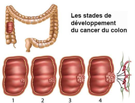 cancer colorectal homme femme