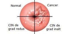 Cancerul de col uterin | Regina Maria