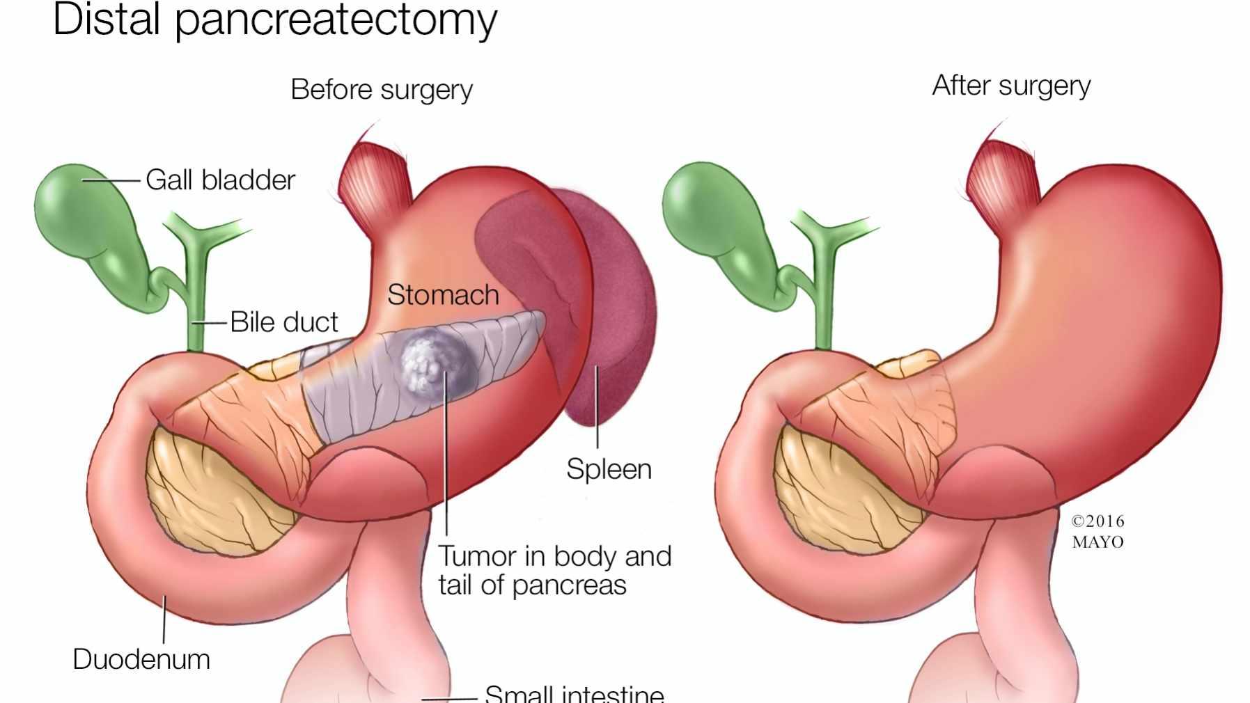 cancer de la pancreas