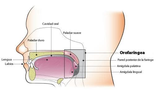 cancer de orofaringe que es