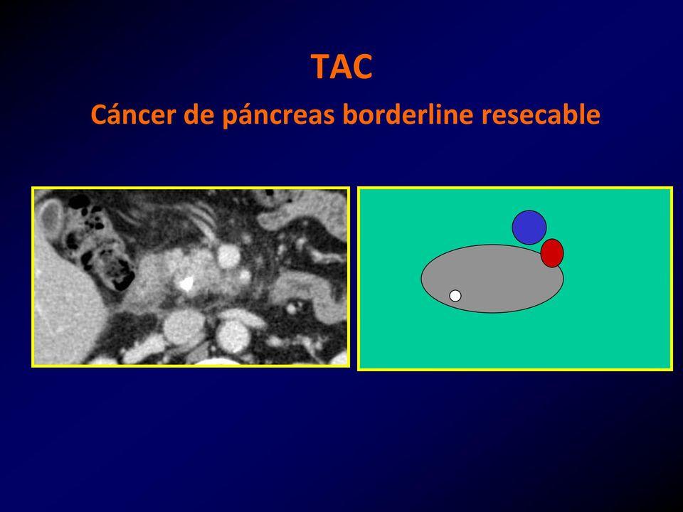 Cancerul pancreasului exocrin, sperante pentru un prognostic mai bun?