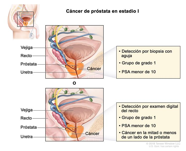 Cancer de prostată - Wikipedia