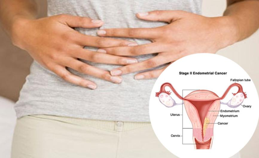 cancer endometrial stage 3