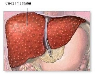 hpv and nasopharyngeal cancer