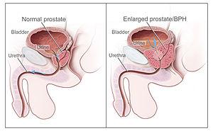 Din ce cauze apare cancerul esofagian
