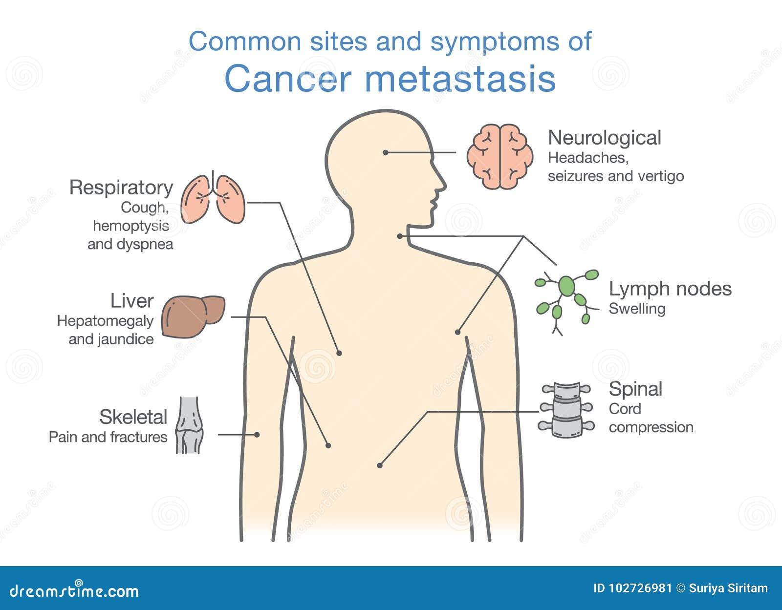 metastaza limfatica