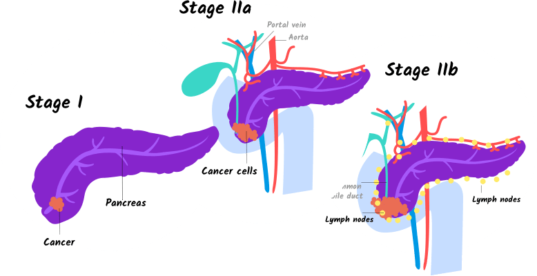 cancer pancreas stage 4