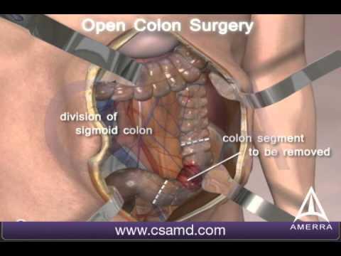 Laparoendoscopic Surgery | Avid Science