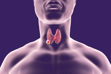 cancer tiroida barbati cancerul de laringe se vindeca