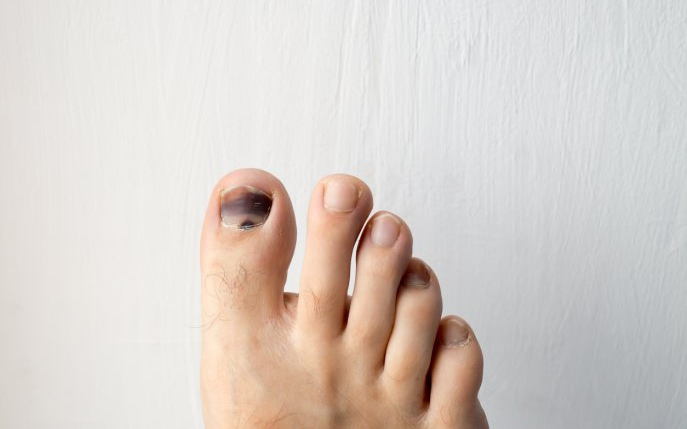 Cancer de piele sub unghie