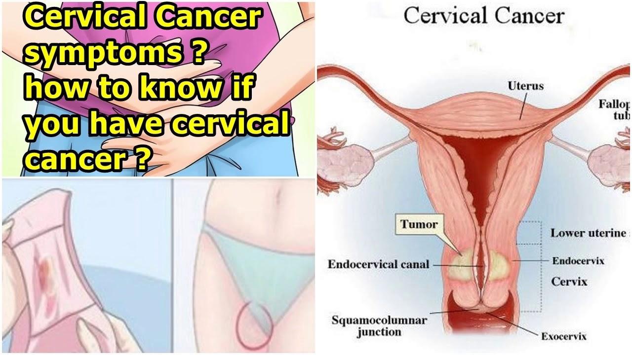 cancer uterine symptoms