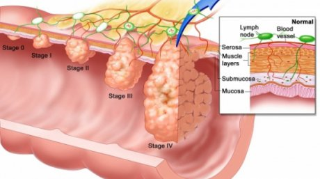 cancerul intestinal simptome vaccino hpv uomo eta