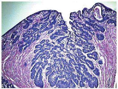Pteparaty hormonale la varicele vlagalscha perete
