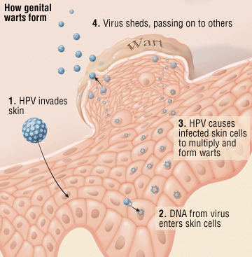 what is a wart virus infection hpv tedavisi yok mu