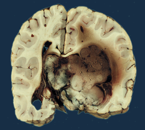 choroid plexus papilloma cancer pancreas ultima faza