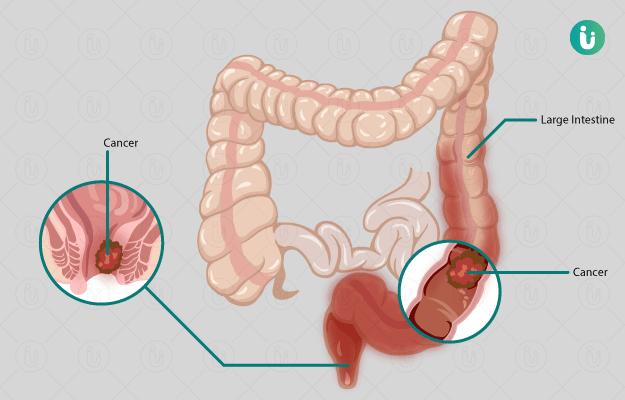 cancer de pancreas borderline