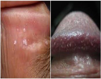 condiloma papillomavirus