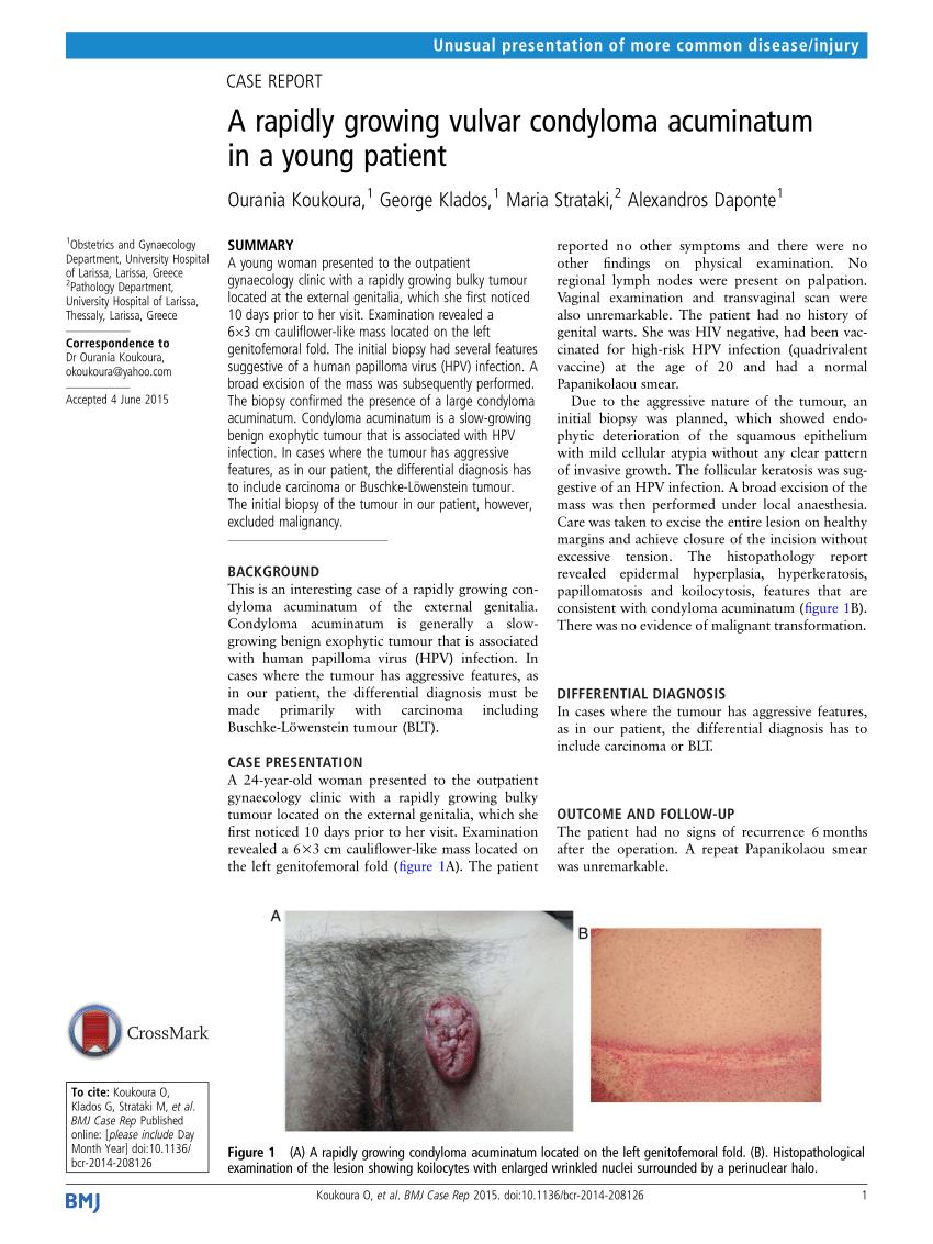 condyloma acuminatum differential diagnosis