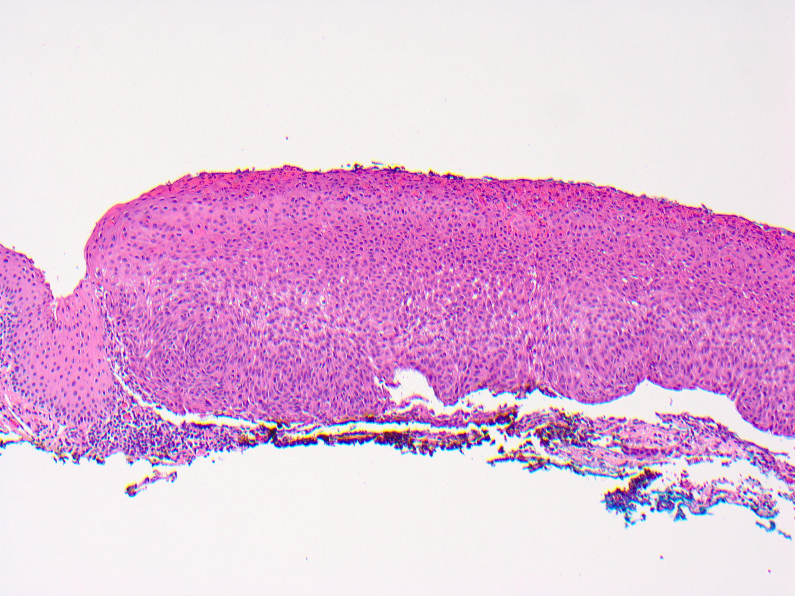 conjunctival papilloma pathology paraziti v tele obrazky