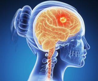 cancerul cerebral simptome
