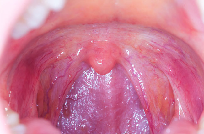 hpv tongue cancer test pour le papillomavirus