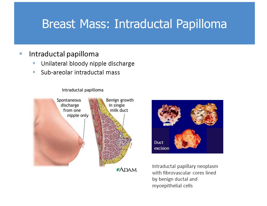 intraductal papilloma breast changes
