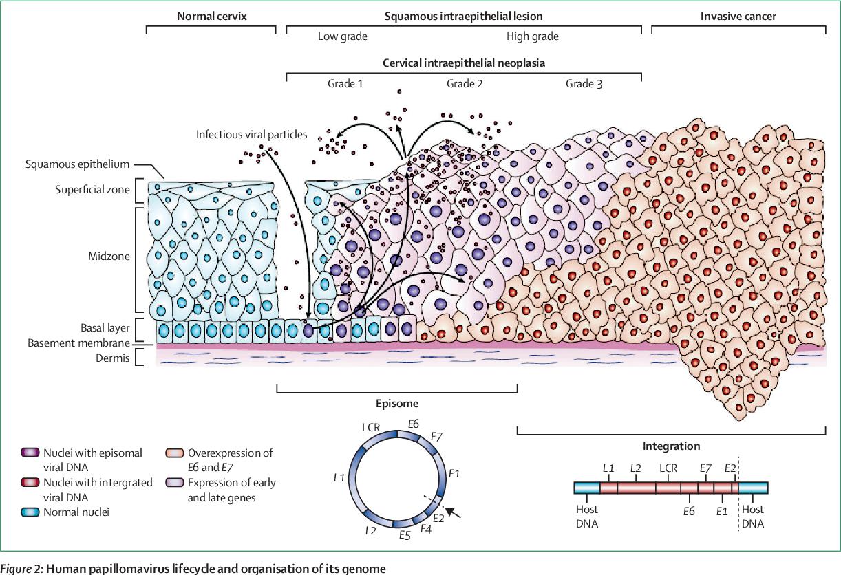 human papilloma virus cancer
