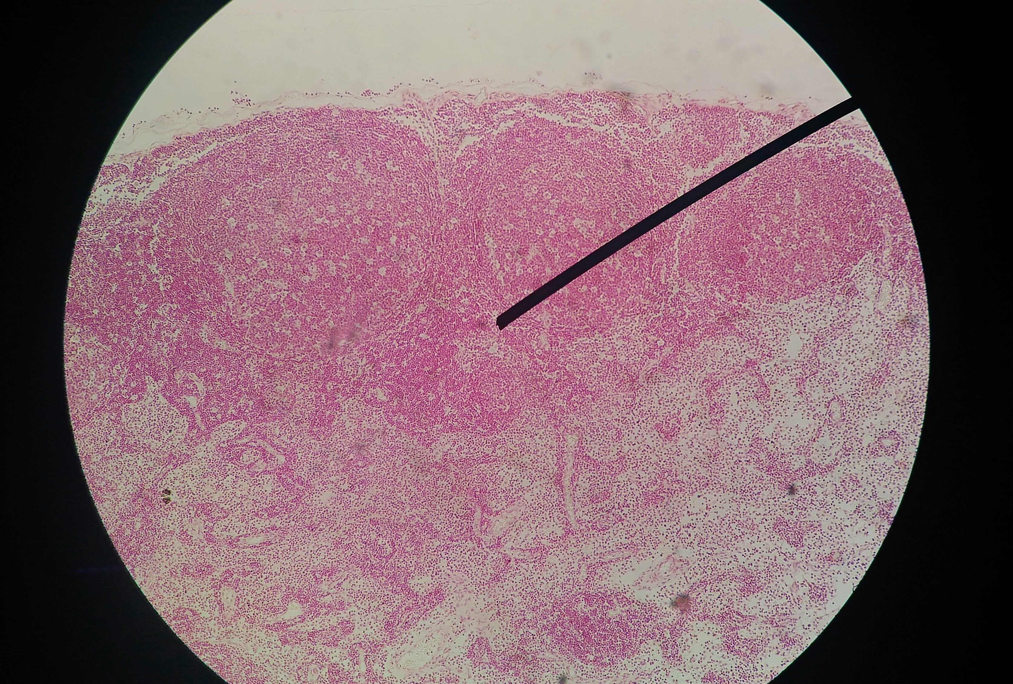 cancer testcancer testicule hamster