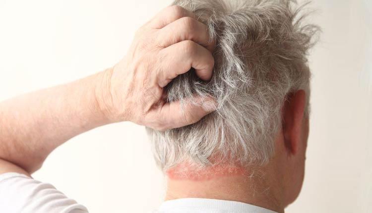 dermatite capilar hpv neck symptoms