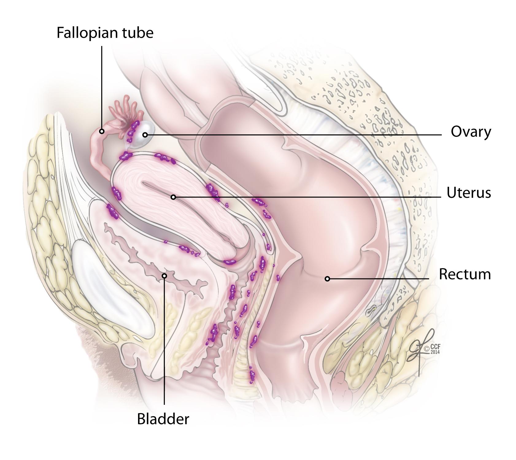 ovarian cancer kya hai hpv infekce lecba