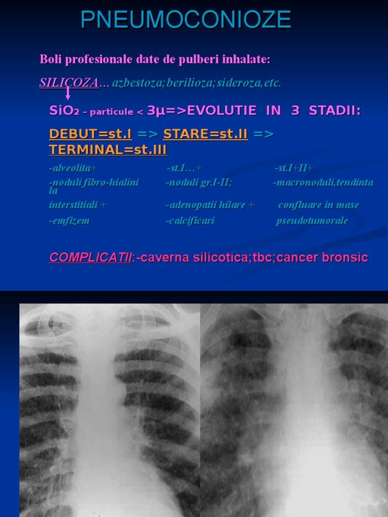 cancer la plamani speranta de viata