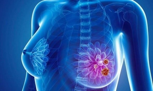 cancer mamar stadiu avansat hpv e tumore alla vescica