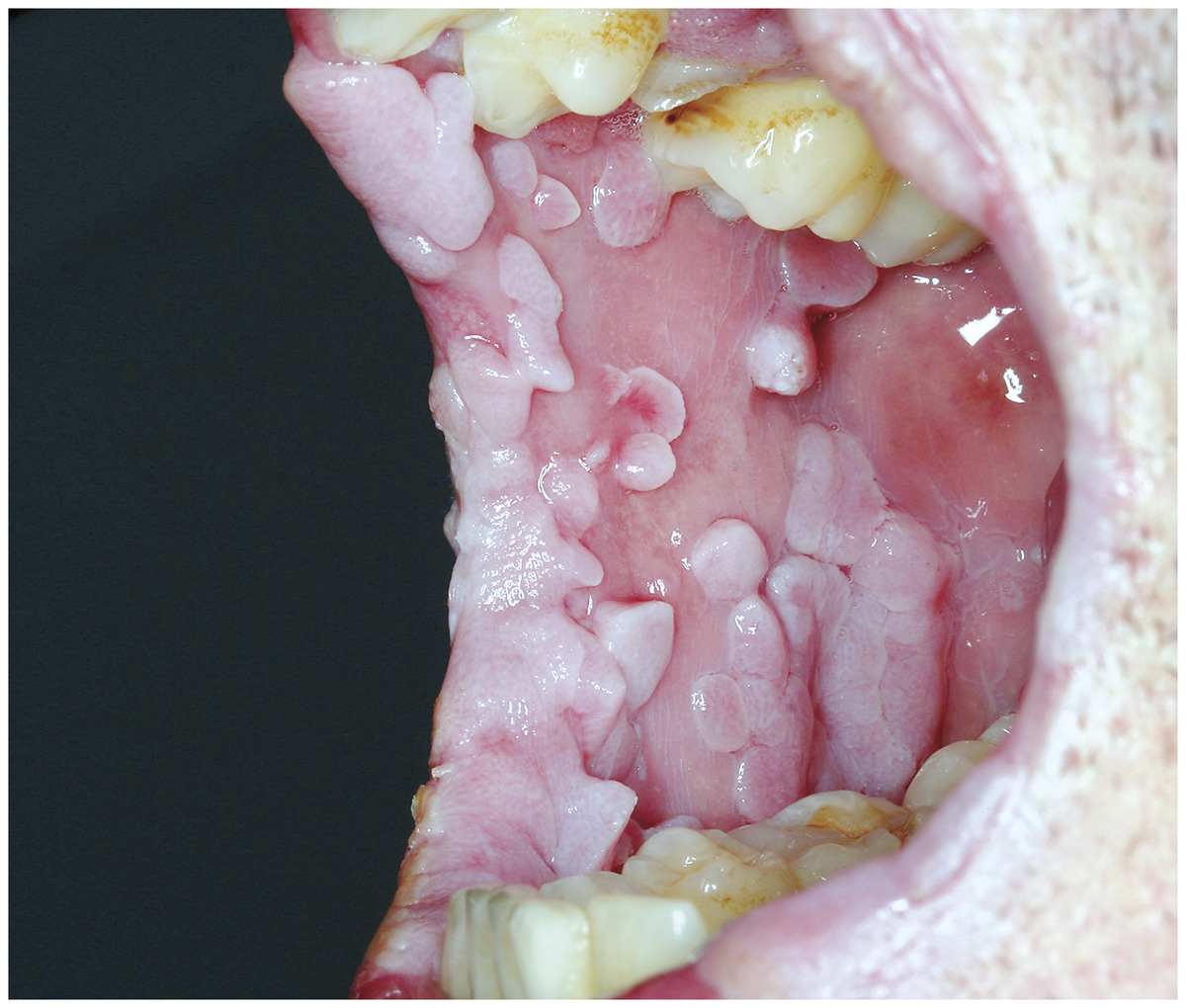 hpv tongue warts