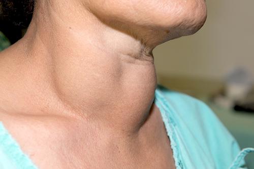 simptomele cancerului de tiroida