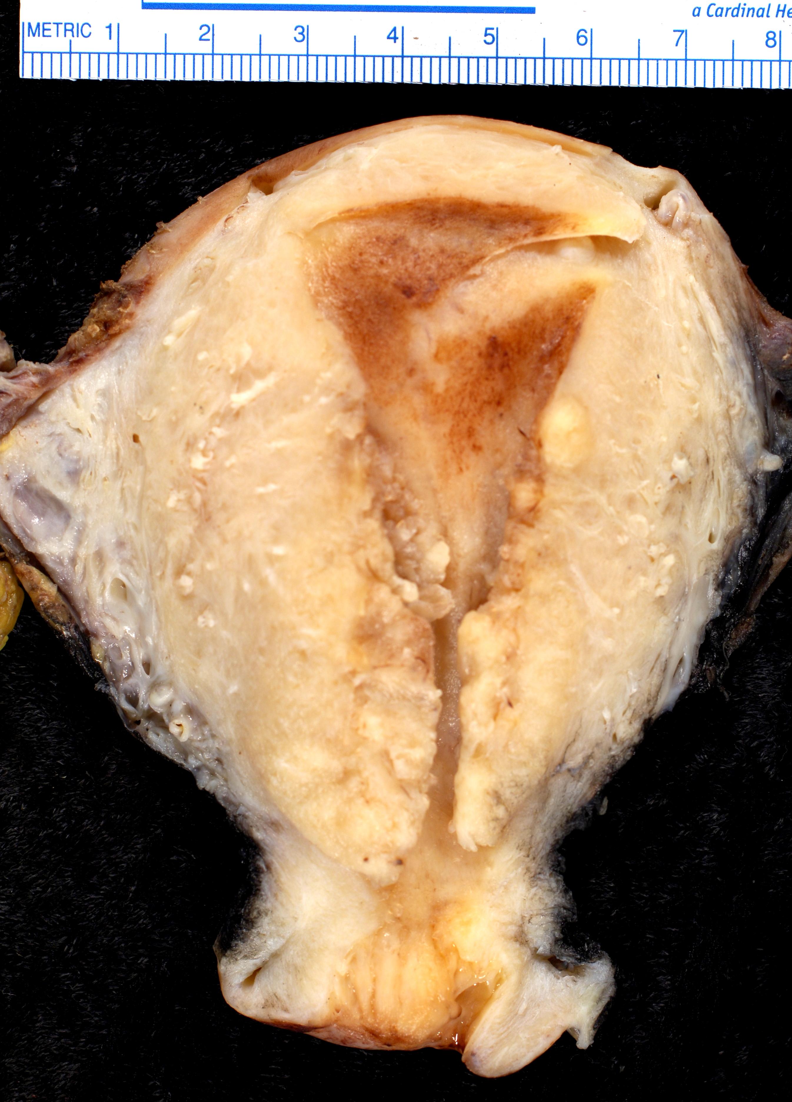 virus papiloma humano como detectar el papiloma humano en hombres tiene cura