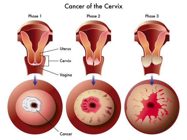 uterine cancer normal pap smear