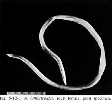 enterobiasis y ascariasis hpv best treatment