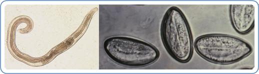 enterobius vermicularis signs and symptoms hpv genital imagens