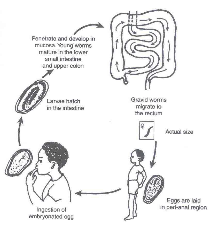 enterobius vermicularis signs and symptoms