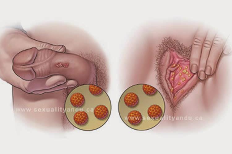 virus del papiloma en ano cancer de prostata gleason
