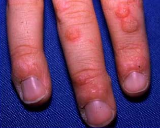 warts on hands from hpv papilloma alla tiroide