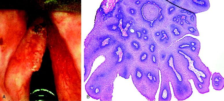 laryngeal papillomatosis in neonates