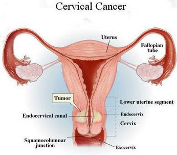 hpv tumore cervice uterina