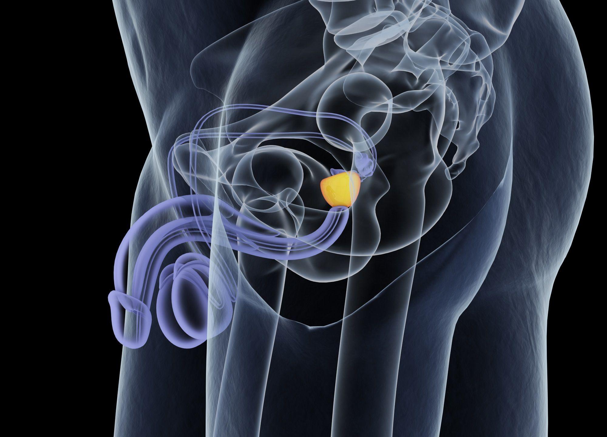 cancer testicule quel age