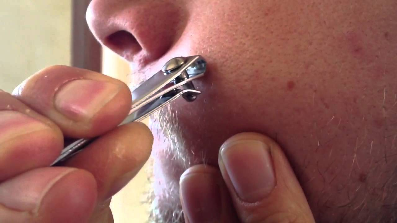 wart off on skin tags