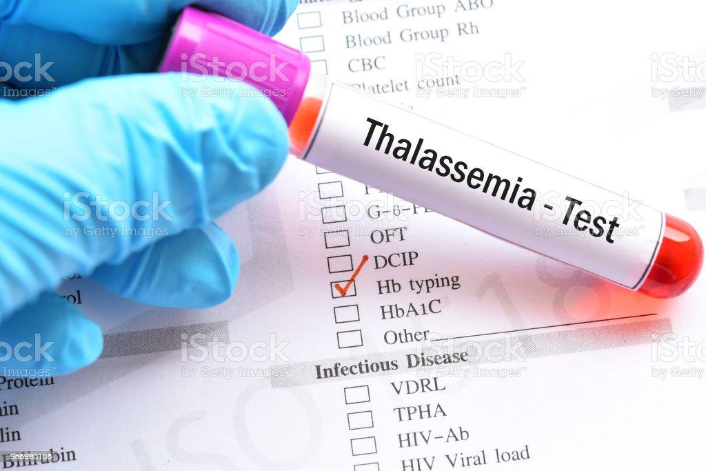 Semne si simptome ale HIV/SIDA care pot fi recunoscute de pacienti