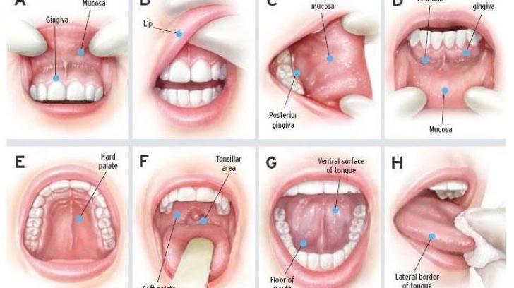 cancer la gat de la fumat simptome rectal cancer histological types
